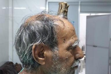 Indian Man Grows Devil's Horn After Head Injury