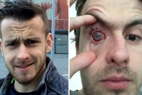 Contact Lens Wearers Beware! Man Goes Blind After Parasites Eat Man's Eye as He Wore Lenses in Shower